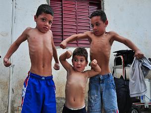 """Estudo pode ajudar a """"avaliar melhor a estado de saúde e nutricional das crianças"""" Foto: Gabriel Chiarastelli/Flickr"""