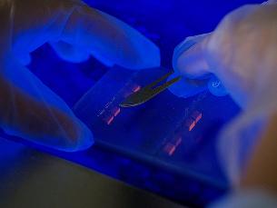 Investigação portuguesa descobre mecanismo que trava crescimento de cancro Foto: Arquivo JPN