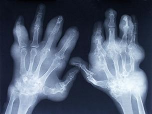 Cerca de 40 mil portugueses sofrem de atrite reumatóide Foto: DR