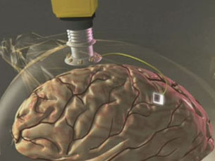 """O """"BrainGate"""" detecta sinais eléctricos no cérebro Foto: DR"""