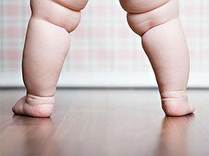 De acordo com a OMS, 12% da população mundial é considerada obesa Foto: Seridec
