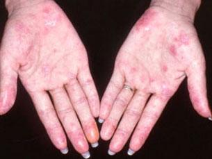 Na região Norte há cerca de mil casos de lúpus Foto: DR