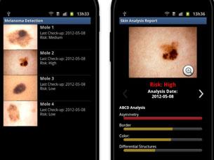 """A aplicação """"Melanoma Detection"""", que permite controlar os sinais cutâneos, é uma das que será apresentada no workshop Foto: DR"""