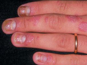 Psoríase não é reconhecida como doença crónica Foto: Sociedade Brasileira de Dermatologia