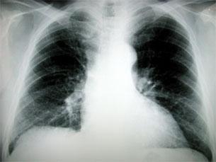 O número de casos de tuberculosos com SIDA em Portugal continuam altos Foto: Arquivo JPN