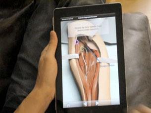 Interativo e de fácil utilização, o Touch Surgery promete ser uma ferramenta útil aos jovens médicos. Foto: DR