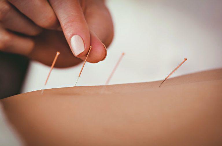 O exercício da Medicina Tradicional Chinesa depende de uma licenciatura.