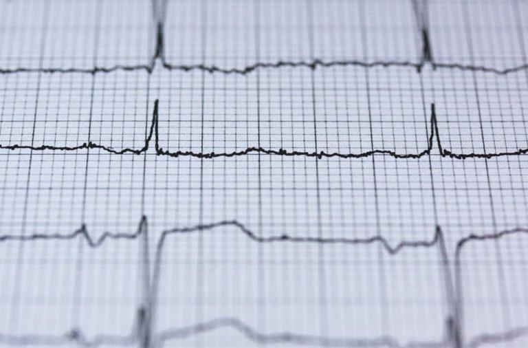 O electrocardiograma foi uma das formas de diagnóstico reconhecidas pelos portugueses inquiridos.